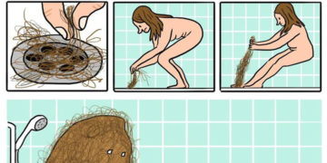 Női haj problémák