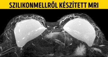 Érdekes orvosi képek
