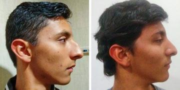 Plasztikai sebésznél járt emberek