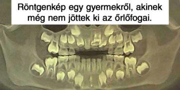 Érdekes röntgenfotók