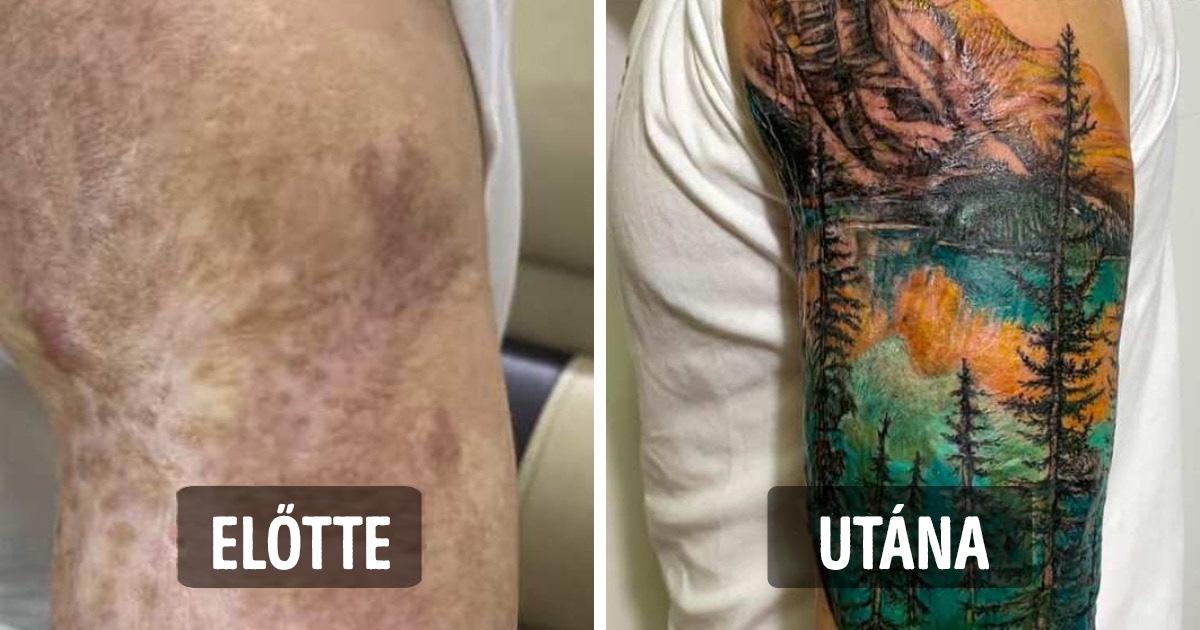 Sebfedő tetoválások