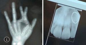 Szokatlan röntgenfotók