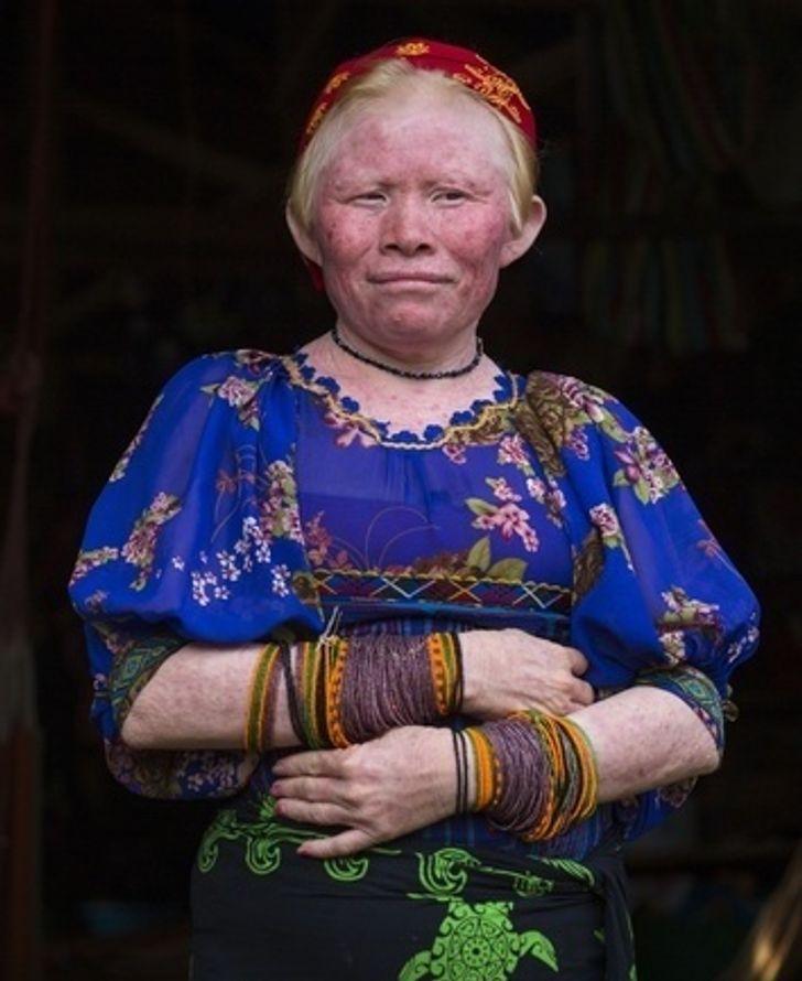 Kuna albínó emberek