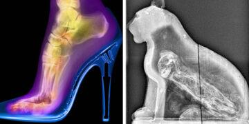 Röntgensugarak rejtett világ