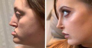 Sikeres plasztikai műtétek