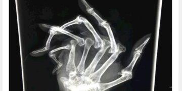 Legfurcsább röntgenképek