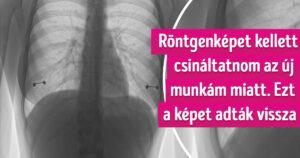 Érdekes röntgenképek