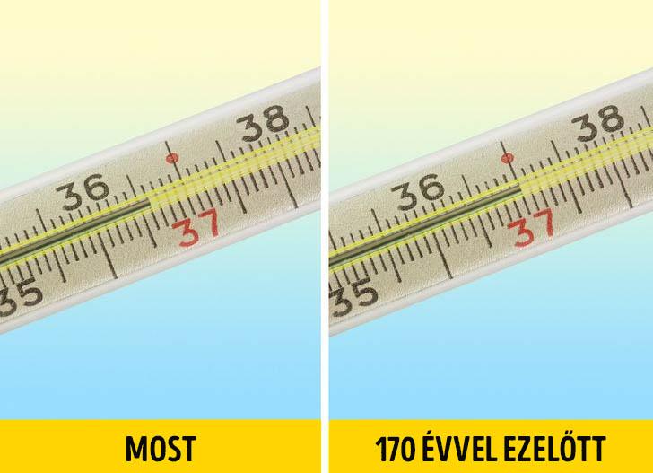 Testhőmérséklet