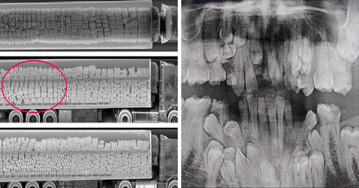 Röntgensugarak képek